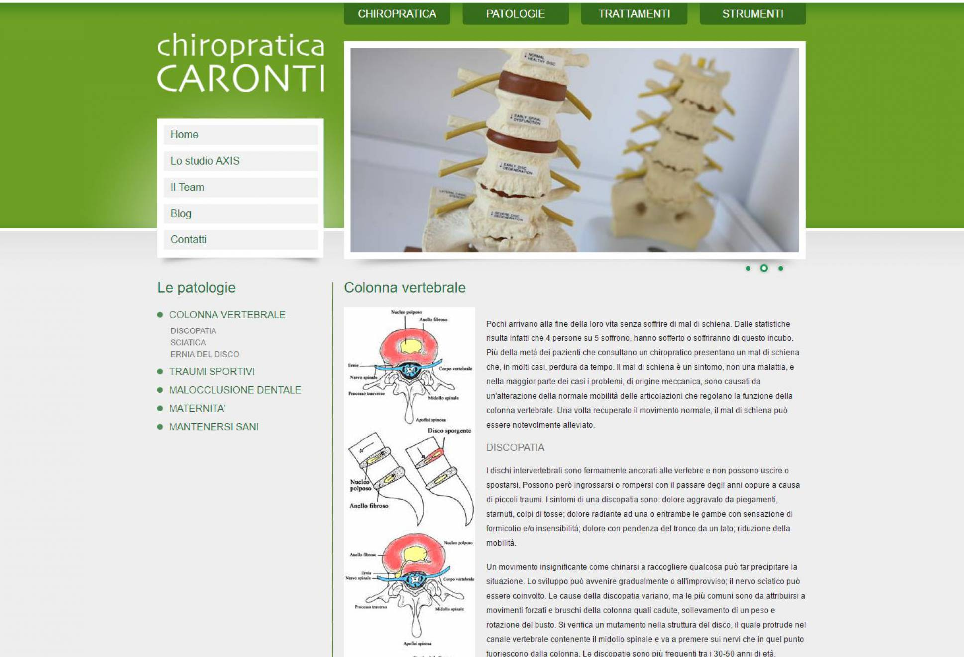 Sezione patologie sito internet Chiropratica Caronti